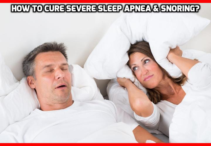 What is the Best Way to Cure Severe Sleep Apnea? This Tiny Change Can Cure Severe Sleep Apnea and Snoring - Most people diagnosed with sleep apnea are sentenced to lifelong use of CPAP Masks while sleeping. But according to a Finnish research, getting 80% improvement in sleep apnea is a relatively simple task.