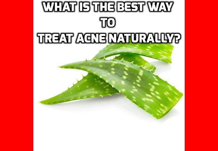 What is the Best Way to Treat Acne Naturally? ALOE VERA AND ACNE - IS THERE A RELATIONSHIP? Aloe vera has some important medicinal qualities that are very effective in helping to treat acne naturally. Aloe Vera has been used in a wide variety of medicinal ways both historically and in modern time.