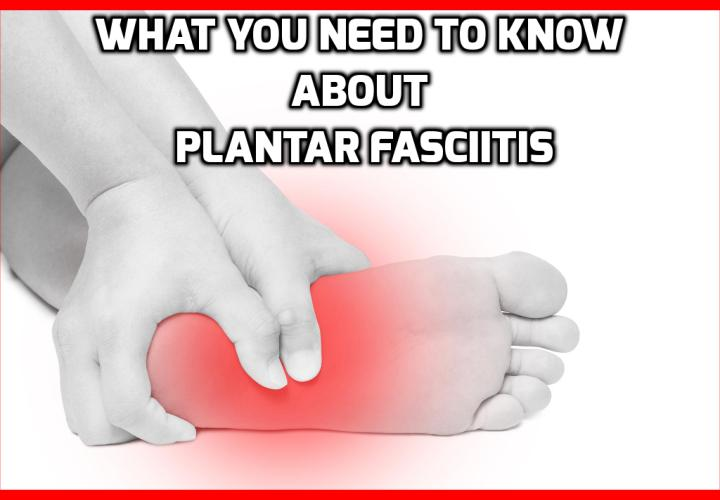 What You Need to Know About Plantar Fasciitis - What Is Plantar Fasciitis? Plantar Fasciitis is an injury sustained as the result of repetitive stress placed on the bottom of the foot. More specifically, its damage sustained on the fascia—a thin layer of fibrous tissue that protects other tissues within your feet. Many people develop Plantar Fasciitis from long periods of standing, running, or performing various load-bearing activities.