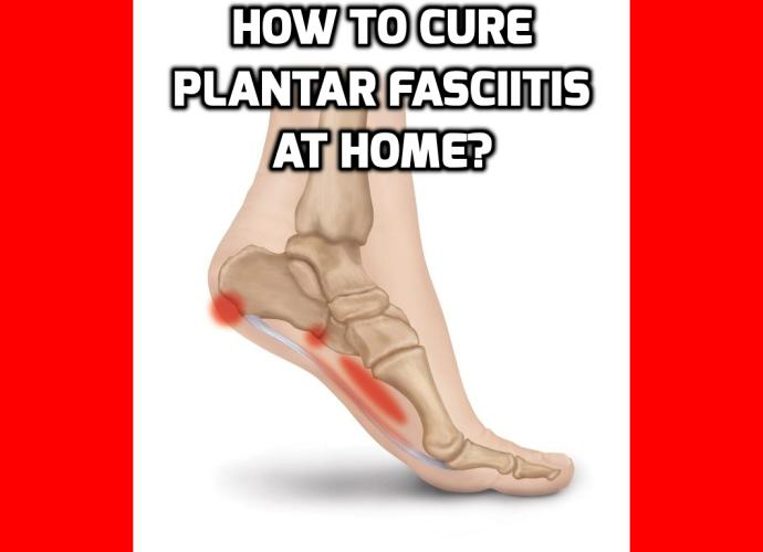 What is the Best Way to Cure Plantar Fasciitis at Home? Have you been suffering from the pain of Plantar Fasciitis? Do you wake up in the morning with aching pain in your heel? Has your Plantar Fasciitis robbed you of your quality of life? Are you looking for ways to cure plantar fasciitis?