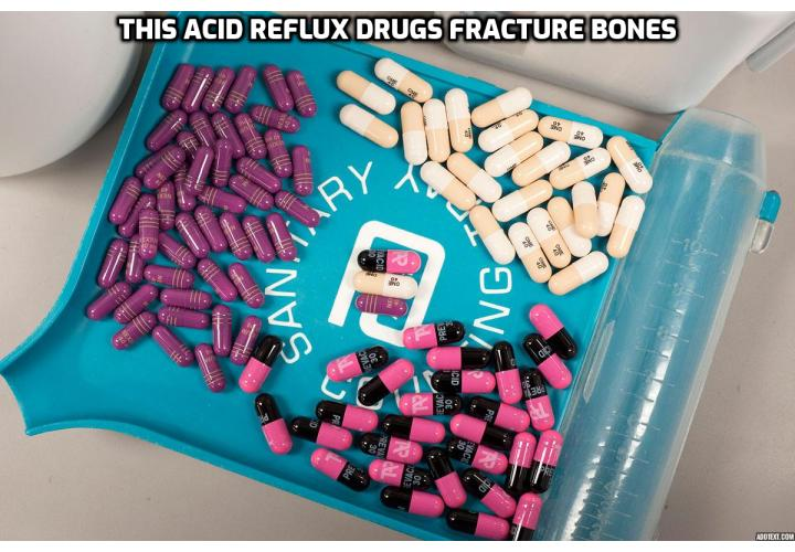 What is the Best Way for Getting Rid of Acid Reflux Permanently? Getting Rid of Acid Reflux Permanently - This Acid Reflux Drugs Fracture Bones. It is common for infants to spit up their food after a meal, but if they also vomit, cough, and choke frequently, struggle to eat, and fail to gain weight, then a well-meaning doctor may decide to prescribe a drug for acid reflux. But a study just published in the journal Pediatrics shows that these drugs also put your child at risk of bone fractures early in their lives.