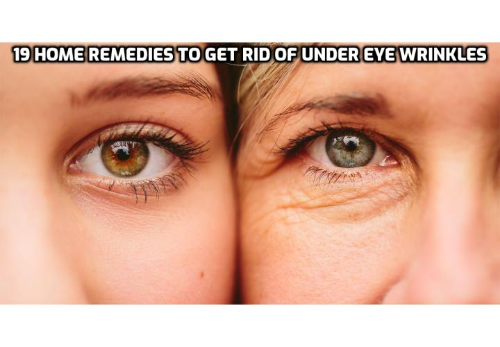 19 Home Remedies to Get Rid of Under Eye Wrinkles Naturally - Wrinkles are unwelcome indicators of aging and sun exposure. Rather than applying chemicals in the form of under-eye creams, choose natural and safe home remedies to get rid of under eye wrinkles. Read on to find out more.