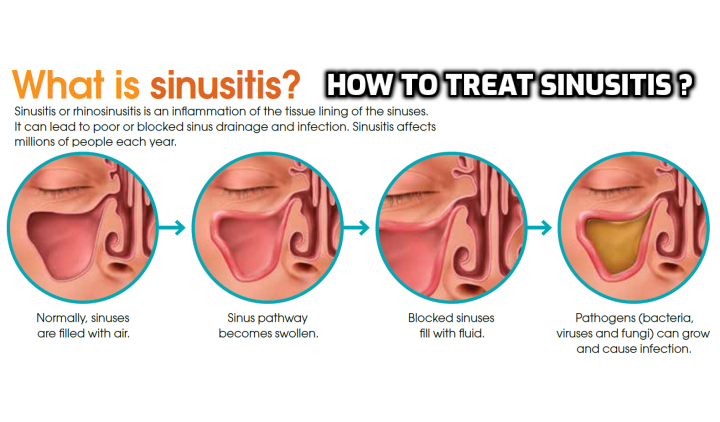 What is the Best Way for Treating My Sinus Problems? Treating My Sinus Problems - Sinus Infections are the ones that affect the cavities, called sinuses, in the bones near the nose. An inflammation of the sinuses causes a disease called sinusitis. Home remedies for treating sinusitis vary from inhaling steam, intaking warm fluids, applying a paste of cinnamon with water, to having jalapeño peppers and ripe grapes' juice.