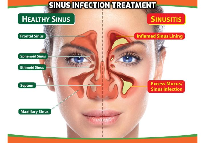 What is the Best Way to Treat Inflammation of the Sinuses? Treat Inflammation of the Sinuses - Sinus is one of the most common ailments gripping a large number of people. It can be infectious as well as non-infectious. Antibiotics are used to kill the sinus bacteria. Decongestants also help in relieving the pain. But as they say, 'prevention is better than cure'. So, how to avoid the sinus infections?
