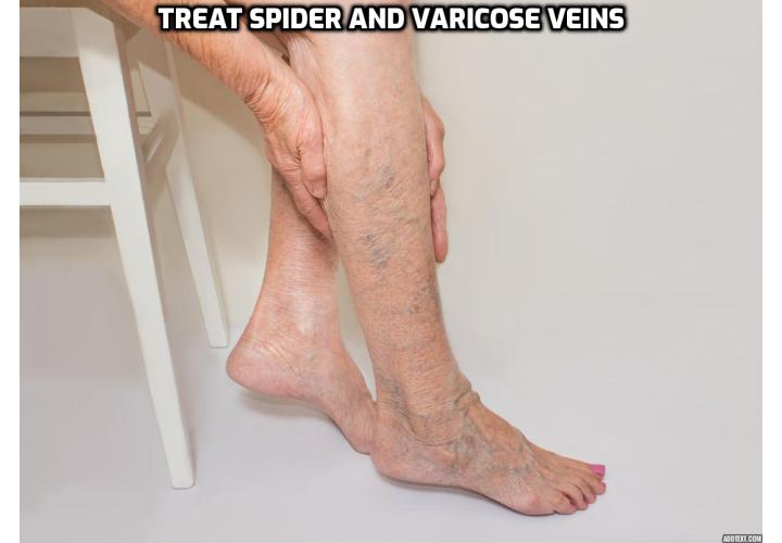 What is Really Best to Treat Spider and Varicose Veins Easily? Want to know which is the most effective way to treat spider and varicose veins in legs at home? Read on to find out more.