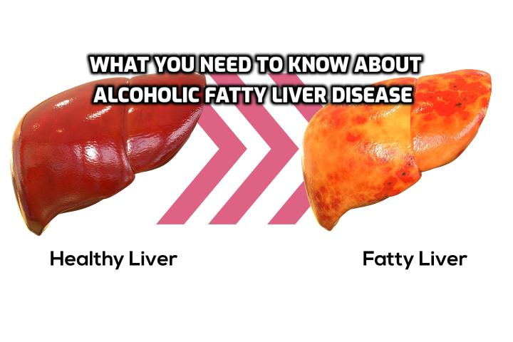 Here is What You Need to Know about Alcoholic Fatty Liver Disease - There are several ways of treating alcoholic fatty liver disease, but the most important method is to stop drinking alcohol. This really does mean the total elimination of alcohol - all beer, wine, hard drinks, tonics and everything else that contains alcohol.