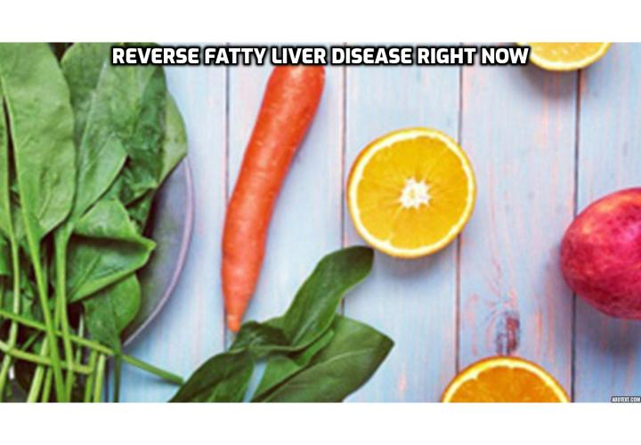 What is the Best Way to Reverse Fatty Liver Disease Right Now? What is fatty liver disease? What are the symptoms of fatty liver disease? What can cause fatty liver disease?  Want to reverse fatty liver disease right now? Read on to find out more.
