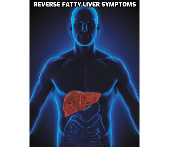 What is the Best Way to Reverse Fatty Liver Symptoms? There's not one medication for everyone to reverse fatty liver symptoms. Instead, the answer may be medication to lose weight, metformin to bring down the blood sugar level, or statin drugs to lower cholesterol and triglycerides.