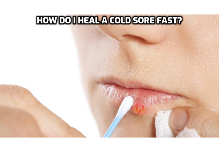 Cure Cold Sores – How Do I Heal a Cold Sore Fast? The technical name for cold sore/fever blister is Herpes Simplex Virus type 1 (HSV-1). This virus is transmitted through humans in the form of saliva, oral contact, dead skin, utensils, etc. Humans suffer from cold sores because of unhealthy lifestyles, oxygen deficient bodies, acidity, stress and strain, and excessive exposure to sun, consumption of junk food, chocolates, poor immune system, etc. To learn how to cure cold sores, read on to find out more.