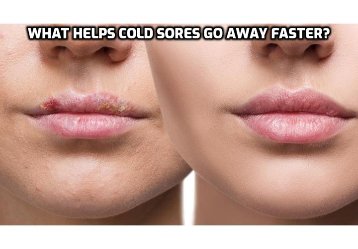 Natural Cold Sores Treatment – What Helps Cold Sores Go Away Faster?  Natural Cold Sores Treatment – Nutrition plays a very important role in making the herpes simplex virus dormant. Good exercise and dietary habits need to be followed if you want to make the virus dormant. It is very important to understand that simple slight changes in food habits will improve the alkaline content in your body thus making the virus dormant for very long periods, if not the rest of your life.