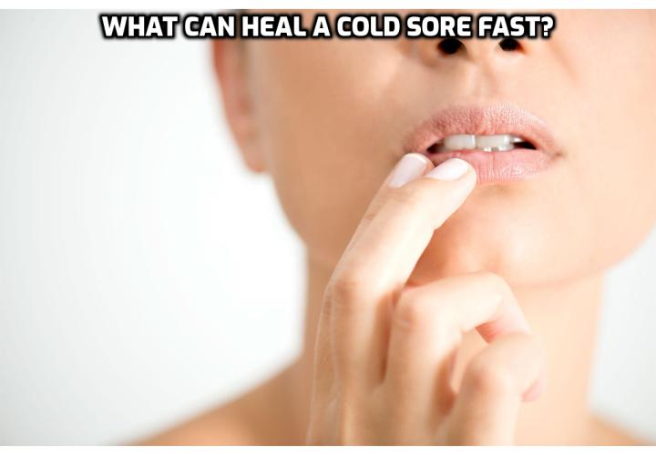 Cold Sores Remedy – What Can Heal a Cold Sore Fast?  Cold Sores Remedy - There are naturally available products which can treat the core sold virus such as Redoxon, Lysine, Aloe Vera, Lemon balm, etc. Some of the tropical medications are Docosanol marketed under the name of Abreva, tromantadine, Zilactin, lipactin, etc.
