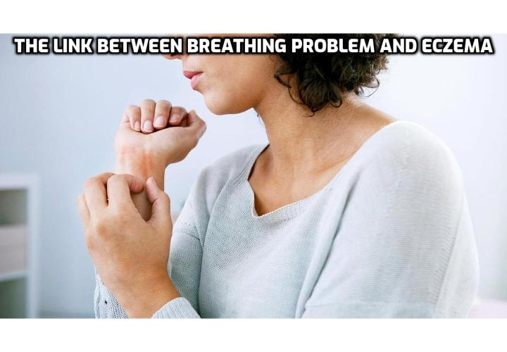 Breathing As a Powerful Eczema Treatment - Sometimes treatments come from the unlikeliest of sources. A powerful eczema treatment which we, most probably, have never heard before is an exercise that aims to bring our breathing levels to normal. Read on to find out more.
