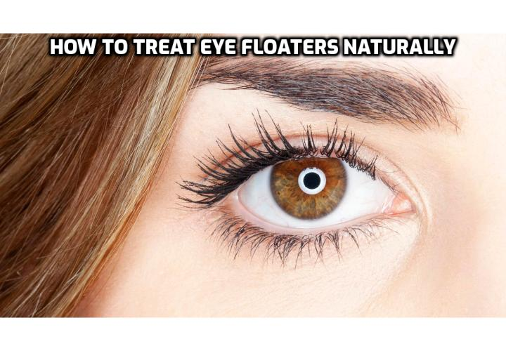 Eye Floaters Natural Remedy – Are Floaters in Eye Serious? Eye Floaters Natural Remedy – Unfortunately, conventional treatment for eye floaters is very limited. Most doctors will tell you to learn to live with them. The only medical procedures available for their removal are laser and vitrectomy. Read on to learn about Daniel Brown's Eye Floaters No More Program on how you can treat the root cause of this problem without depending on prescription drugs, surgery and other mainstream medical treatments.  Aside from eliminating all signs of eye floaters, like dots, shapes and blurs, this program is also filled with lots of techniques and tips for treating a host of eyesight symptoms and problems.