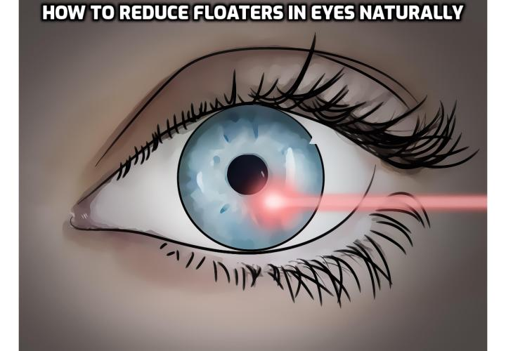 Revealing Here - How to Reduce Floaters in Eyes Naturally? Reduce Floaters in Eyes Naturally – Treating eye floaters depends on the underlying cause. Some cases are harmless, but more severe cases can affect your eye health. If eye floaters begin to impair your vision, there are treatments available to make them less noticeable or remove them. Read on here to find out more.