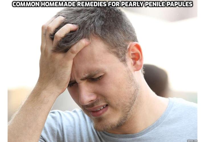Treating Pearly Penile Papules at Home – What is the Best Treatment for PPP?  Treating Pearly Penile Papules at Home – If you want a treatment which does not present any risks, is cheap and extremely effective, read on here to learn about this Pearly Penile Papules Removal Program. You will find out the best pearly penile papules treatment which can be done at home, is cheap, safe and will get you rid of those bumps forever.