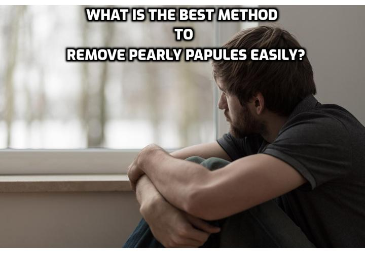 Pearly Papules Home Treatment – What is the Best Method to Remove Pearly Papules Easily?  Pearly Papules Home Treatment – Pearly penile papules is a condition with which is hard to live. Learn now how you can forget about this condition forever by reading more about the Pearly Penile Papules Removal Program. You will find out and effective method which will treat pearly penile papules safely and naturally.