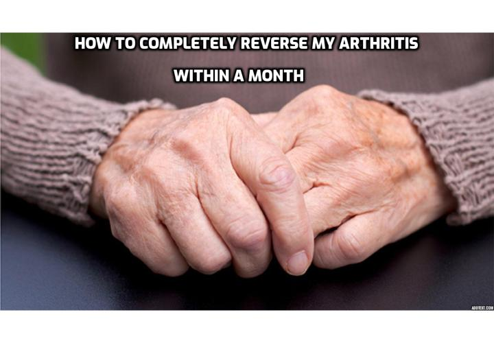 Completely Reverse My Arthritis Within a Month - Arthritis makes everyday activities difficult. Sitting for too long or typing on a computer are just two examples that can be compared to pulling teeth for arthritis sufferers. Forget the pain that sitting in front of the screen surfing the net brings for a moment – there is some light – the Internet, according to an Australian study, can help you out – and it's more effective than a well-meaning doctor.