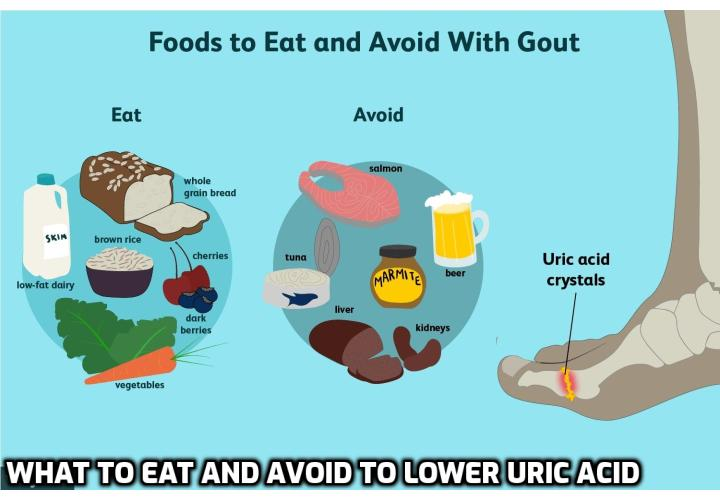 What to Eat and What to Avoid to Lower Your Uric Acid? For the management of gout, the American College of Rheumatology just released its 2020 guidelines—or guideline; the only recommendation is for people to lower their uric acid levels. And while the American College of Rheumatology wants us to do this by using drugs, we will instead give you some advice of what to eat and what to avoid to lower your uric acid. Read on to find out more.