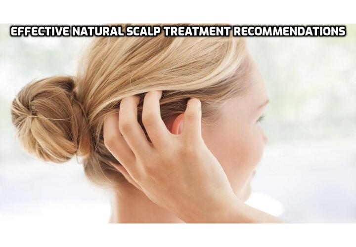 Natural Scalp Treatment - Effective Natural Scalp Treatment Recommendations. Scalp treatments using natural oils not only help to soothe the symptoms of uncomfortable conditions in minutes, but they can also help to heal, prevent hair loss and restore healthy hair and balance. Oils like lavender and neem are fantastic not only for their antibacterial and antifungal properties, but they also help to stop itching and soothe irritation - making them great ingredients in a scalp treatment remedy.