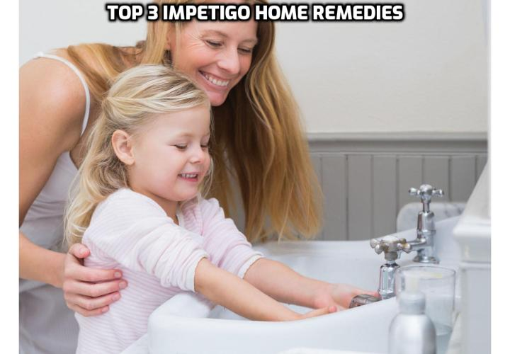 Here is a list of some useful Impetigo home remedies that you can begin using right away to cure Impetigo in days. Read on here to find out more.